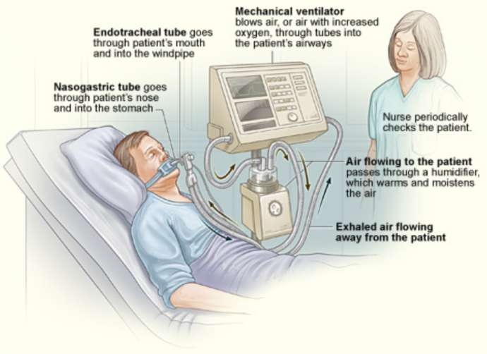 What a ventilator does
